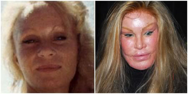 jocelyn-wildenstein-plastic-surgery