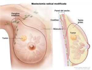 tumor en el seno